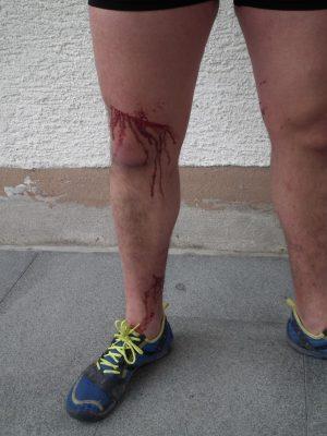 Das rechte Bein sieht etwas mitgenommen aus