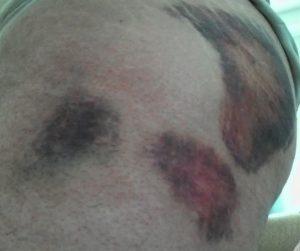 Blutergüsse Hüfte, Juli 2013